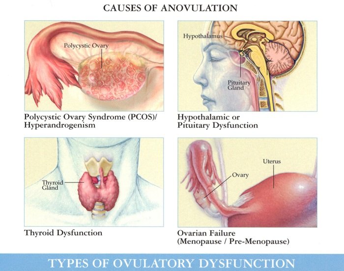How Can I Ovulate Naturally With Pcos